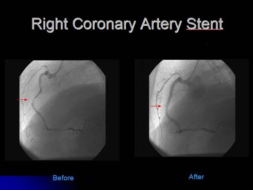 Cardiac Stenting